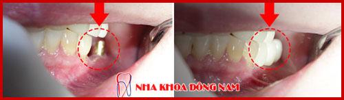 hình ảnh trồng 1 trụ implant phục hình 3 răng sứ 1