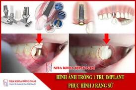 hình ảnh trồng 1 trụ implant phục hình 3 răng sứ