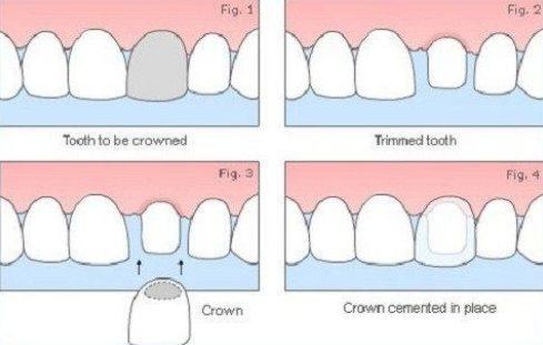 Alo bác sĩ giải đáp các câu hỏi về bọc răng sứ 1
