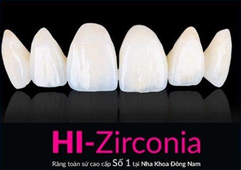 Alo bác sĩ giải đáp các câu hỏi về bọc răng sứ 10