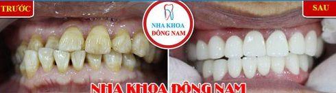 Alo bác sĩ giải đáp các câu hỏi về bọc răng sứ 2
