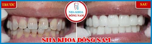 Alo bác sĩ giải đáp các câu hỏi về bọc răng sứ 3