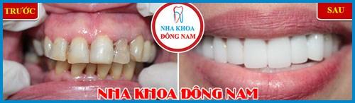 Alo bác sĩ giải đáp các câu hỏi về bọc răng sứ 5