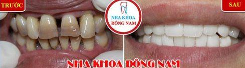Alo bác sĩ giải đáp các câu hỏi về bọc răng sứ 6