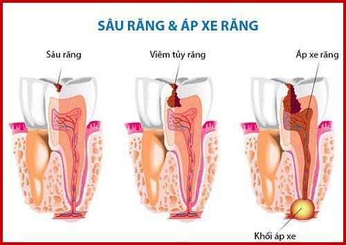 alo bác sĩ - giải đáp câu hỏi về áp xe chân răng 1