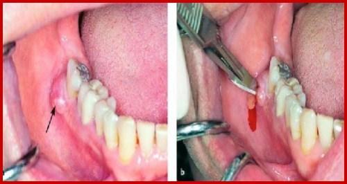 alo bác sĩ - giải đáp câu hỏi về áp xe chân răng 3