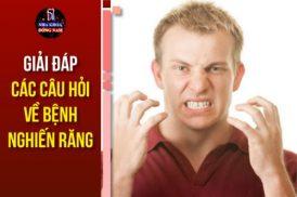 Giải Đáp Các Câu Hỏi Về Bệnh Nghiến Răng