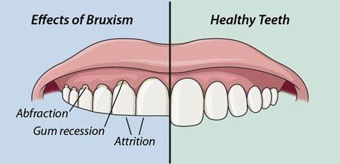 alo bác sĩ - giải đáp câu hỏi về bệnh nghiến răng 2