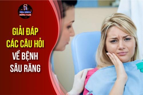 Giải đáp các câu hỏi về Bệnh Sâu Răng