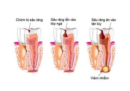 Alo bác sĩ - giải đáp các câu hỏi về bệnh sâu răng1
