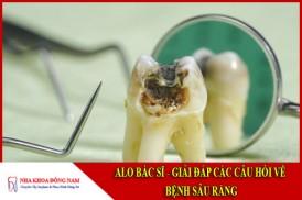 Alo bác sĩ - giải đáp các câu hỏi về bệnh sâu răng