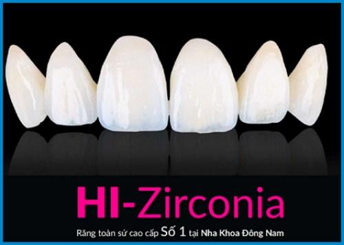 Alo bác sĩ - Giải đáp các câu hỏi về phương pháp bọc răng sứ 4