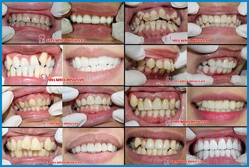 Alo bác sĩ - Giải đáp các câu hỏi về phương pháp bọc răng sứ 6