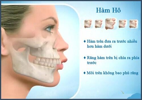 Alo bác sĩ - giải đáp các câu hỏi về cách chữa răng hô