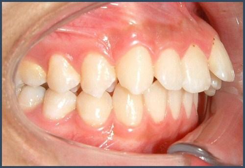 Alo bác sĩ - giải đáp các câu hỏi về cách chữa răng hô2