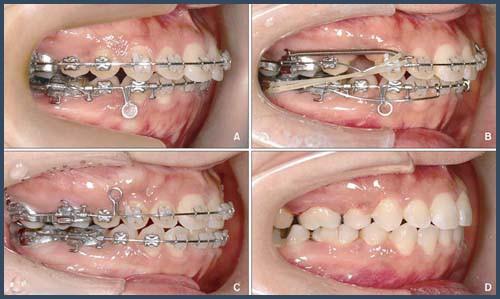 Alo bác sĩ - giải đáp các câu hỏi về cách chữa răng hô 3
