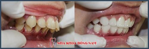 Alo bác sĩ - giải đáp các câu hỏi về cách chữa răng hô 4