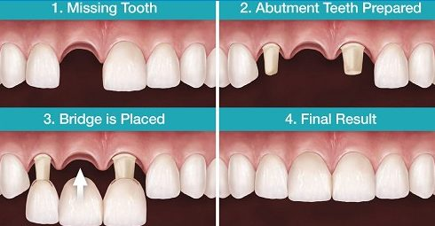 Alo bác sĩ - giải đáp các câu hỏi về cầu răng sứ 1