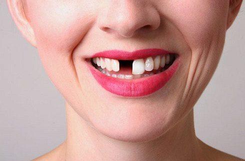 Alo bác sĩ - giải đáp các câu hỏi về cầu răng sứ 2