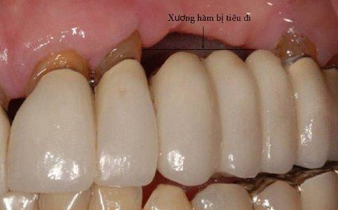 Alo bác sĩ - giải đáp các câu hỏi về cầu răng sứ 3