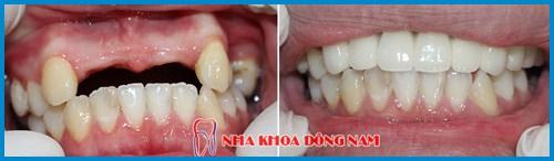 Alo bác sĩ - giải đáp các câu hỏi về cầu răng sứ 4