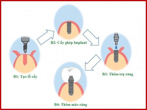 Alo bác sĩ - giải đáp các câu hỏi về cấy ghép implant 1