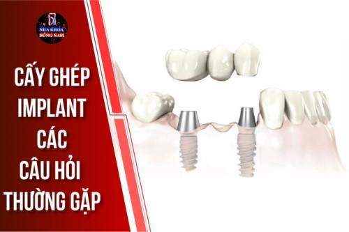 Alo Bác Sĩ - Giải Đáp Các Câu Hỏi Về Cấy Ghép Răng Implant
