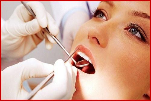 Alo bác sĩ - Giải đáp các câu hỏi về ê buốt răng 4