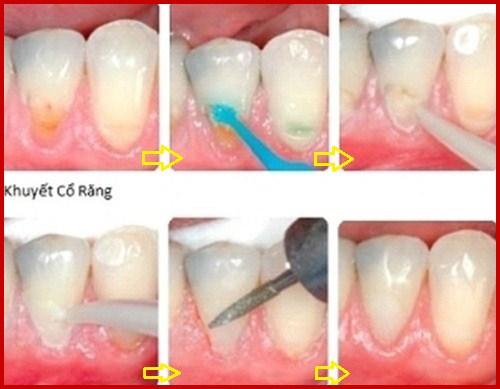 Alo bác sĩ - Giải đáp các câu hỏi về khuyết cổ răng 3