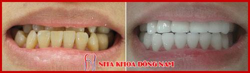 bọc răng sứ hi-zirconia cho răng móm và ố vàng 1