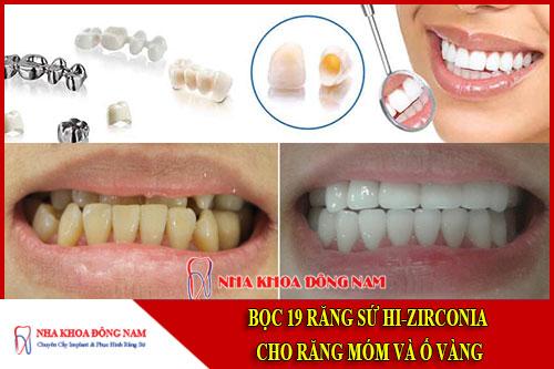 bọc răng sứ hi-zirconia cho răng móm và ố vàng
