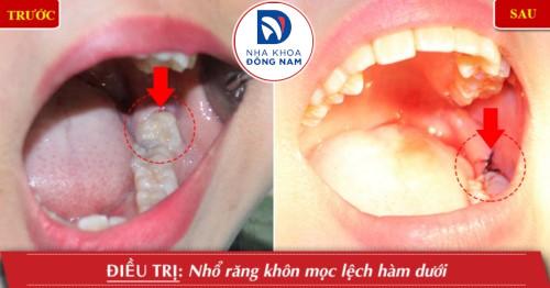 khâu vết thương sau nhổ răng