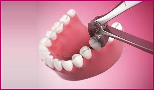 Cắt chỉ sau khi nhổ răng khôn có đau không 1