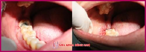 Cắt chỉ sau khi nhổ răng khôn có đau không 5