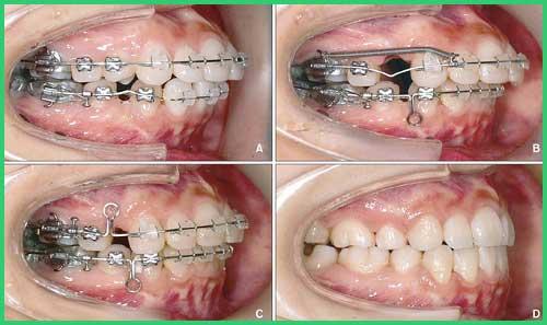 Chỉnh nha niềng răng tại nha khoa đông nam 2
