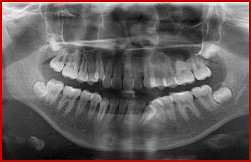 Chụp X-Quang răng bao nhiêu tiền 1