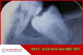 Chụp X-Quang răng bao nhiêu tiền