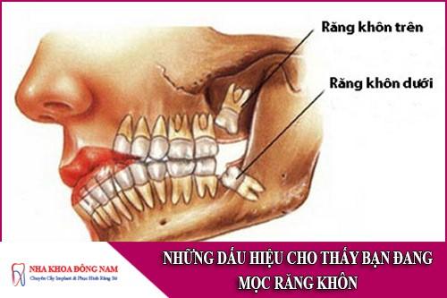 những dấu hiệu cho thấy bạn đang mọc răng khôn