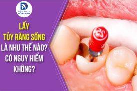 Lấy tủy răng sống là như thế nào có nguy hiểm không