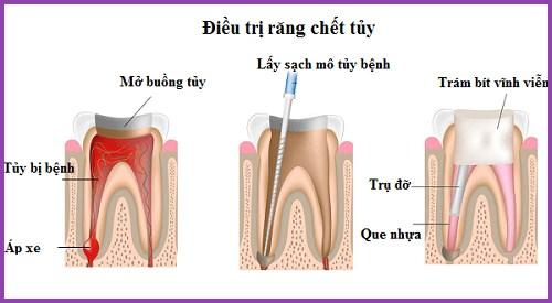 Lấy tủy răng sống là như thế nào 1