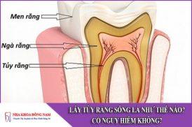 lấy tủy răng sống như thế nào? có nguy hiểm không
