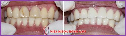 Lấy tủy răng sống là như thế nào 5