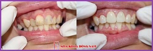 Lấy tủy răng sống là như thế nào 7