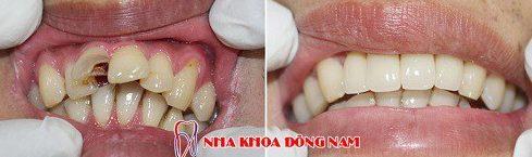 Lấy tủy răng sống là như thế nào 8