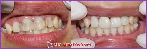 Lấy tủy răng sống là như thế nào 9