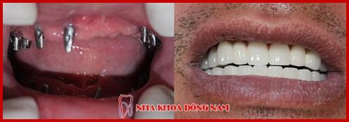 Quá trình tiêu xương hàm sau khi mất răng có nhanh không 10