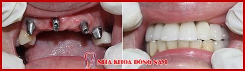 Quá trình tiêu xương hàm sau khi mất răng có nhanh không11