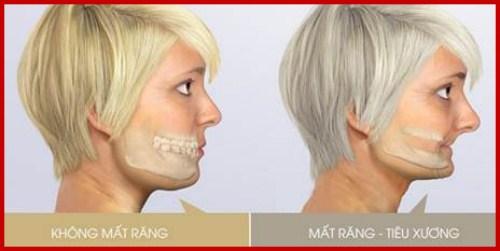 Quá trình tiêu xương hàm sau khi mất răng có nhanh không 2