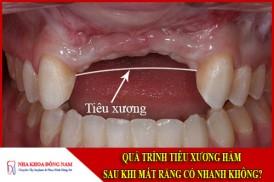Quá trình tiêu xương hàm sau khi mất răng có nhanh không