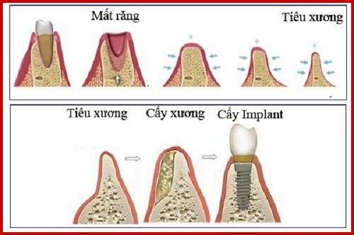 Quá trình tiêu xương hàm sau khi mất răng có nhanh không 3